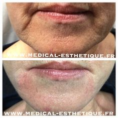 Ultherapy ou Ulthera - Cliché avant - Dr AMAT - ????Greffe FUE 2.0 Medic Xpert