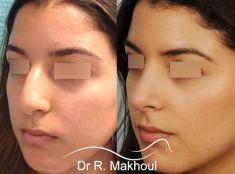Dr Rani Makhoul - Affinement du dorsum et de la pointe, ablation de la bosse, correction de la columelle tombante.