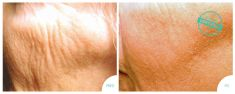 Laser procedures in aesthetic dermatology - Photo before - Brandeis Clinic by Lucie Kalinová