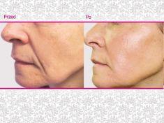 Regeneris – biostymulacja komórek skóry/osocze bogatopłytkowe - Zdjęcie przed