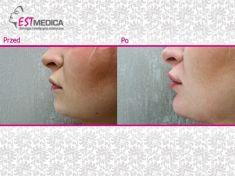 Powiększanie ust (Augmentacja) - Zdjęcie przed - Klinika Wiatroszak - ESTmedica