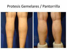 Aumento de glúteos y pantorrillas - Foto Antes de - Dr. Fabian Peréz Rivera