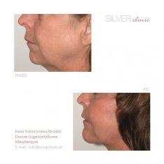 Mezoterapia igłowa - odmładzanie twarzy, szyi, dekoltu, dłoni - Zdjęcie przed - dr Adam Srebrzyński - Silver Clinic