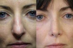 Rinoplastica - Le linee del dorso sono ora nettamente migliorate.