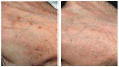 Dermis - Gabinet Dermatologii Ogólnej, Estetycznej i Laserowej - Zdjęcie przed - Dermis - Gabinet Dermatologii Ogólnej, Estetycznej i Laserowej