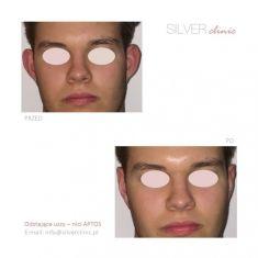 Korekcja uszu (Otoplastyka) - Zdjęcie przed - dr Adam Srebrzyński - Silver Clinic