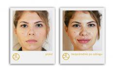 Powiększanie ust kwasem hialuronowym - Powiększanie ust kwasem hialuronowym