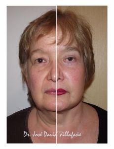 Lifting facial APTOS - Foto Antes de - Dr. Jose David Villafañe Tejeda