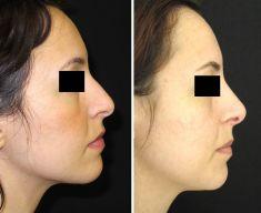 Rinoplastica - Rimodellamento del dorso e della punta.