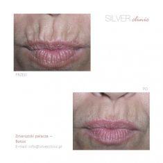 BOTOX® - Zdjęcie przed - dr Adam Srebrzyński - Silver Clinic