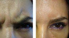 Botox/Dysport - Eliminar arrugas - Foto Antes de - Dra. Rocío Aracely Trujillo Aulestia