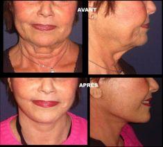 Lifting du visage - Cliché avant - Dr Paul Seknadje