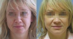 Facelift, Lifting twarzy (podciąganie powłok twarzy) - Zdjęcie przed - Dr Szczyt Klinika Chirurgii Plastycznej