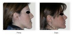 Profiloplastica (Rinoplastica e Mentoplastica) - Foto del prima - Dott. Sebastian Torres Farr