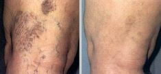Spider veins laser removal (redness, birh marks) - Photo before - Klinika ELITE - Centrum Laseroterapii