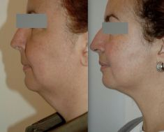 Liposuction - Photo before - Dr Jacques Buis