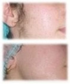 Laser hair removal - Photo before