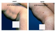 Liposuccion - Cliché avant - Dr Yohann Derhy