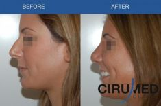 Rhinoplasty (Nose Job) - Photo before - Cirumed Clinic