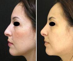 Rinoplastica - Rimodellamento cartilagini alari, raspaggio gibbosità dorsali, riposizionamento neo-dome.