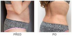 Laserová liposukce - SlimLipo - fotka před - Klinika YES VISAGE - klinika estetické medicíny a plastické chirurgie