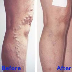 Varicose veins treatment - Photo before - Azim Jahangir Khan M.D.