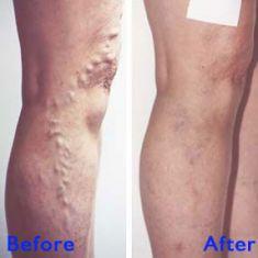 Varicose veins treatment - Photo before - Azim Jahangir Khan M.D.
