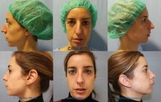 Cirumed Clinic - Foto Antes de - Cirumed Clinic