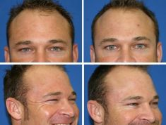 Botulinum toxin - Wrinkle Removal - Photo before - M.D., F.A.C.S. Bernard A. Shuster