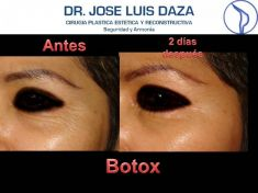 Botulinum toxin - Wrinkle Removal - Photo before - Dr. Jose Luis Daza Flores