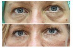 Odstranění kruhů pod očima - ŽENA, 41 LET, KOREKCE KRUHŮ POD OČIMA KYSELINOU HYALURONOVOU
