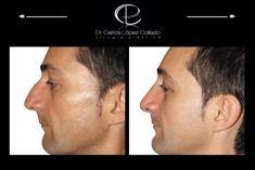 Cirugía de la nariz (Rinoplastia) - Foto Antes de - All You Want To Be