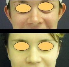 Operace uší (Otoplastika) - fotka před - MUDr. Karel Urban