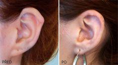 Operace uší (Otoplastika) - plastika boltců včetně řešení Darwinova hrbolku