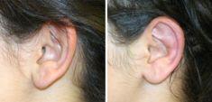 Otoplastie (Chirurgie esthétique des oreilles) - Cliché avant - Dr Xavier Tenorio