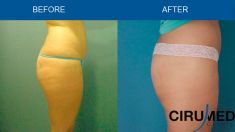 Liposuction - Photo before - Dr. Alexander Amir Aslani