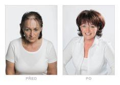 - Fotka pred - Klinika YES VISAGE - klinika estetickej medicíny a plastickej chirurgie