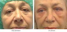 Eyelid surgery (Blepharoplasty) - Photo before - Laserová dermatologická klinika ALTOS