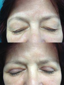 Operácia očných viečok (Blepharoplastika) - Fotka pred - ENVY klinika estetickej medicíny