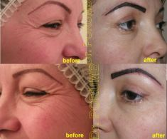 Botulinum toxin - Wrinkle Removal - Photo before - Dr. Serban Porumb