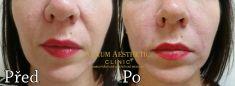 Výplně na bázi kyseliny hyaluronové - Omlazení obličeje pomocí aplikace výplně na bázi kyseliny hyaluronové do nosoretní rýhy v dávce 2x0,5ml u ženy středního věku.
