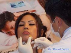 Queiloplastia (Aumento de labios) - Foto Antes de - Dr. Manuel Lucero Carrion