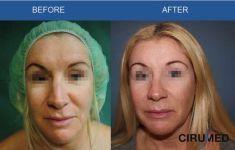 Lifting facial - Foto Antes de - Dr. Alexander Amir Aslani