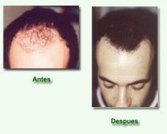 Dr. Guillermo Galgano - Foto Antes de - Dr. Guillermo Galgano