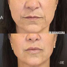 Augmentation des lèvres - 1 seringue d
