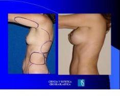 Aumento de senos o mamoplastia de aumento (implantes mamarios) - Foto Antes de - Dr. Luis Pavajeau Muñoz