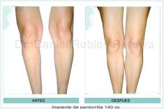 Aumento de glúteos y pantorrillas - Foto Antes de - Dr. Daniel Robles Pereyra
