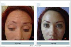 Botox/Dysport - Eliminar arrugas - Foto Antes de - Dr. Daniel Robles Pereyra