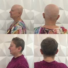 CLINICAL HAIR&HEALTH Vlasové centrum a klinika zdraví - fotka před - CLINICAL HAIR&HEALTH Vlasové centrum a klinika zdraví