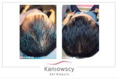 Leczenie wypadania włosów - Zdjęcie przed i po zabiegu Regenera Activa